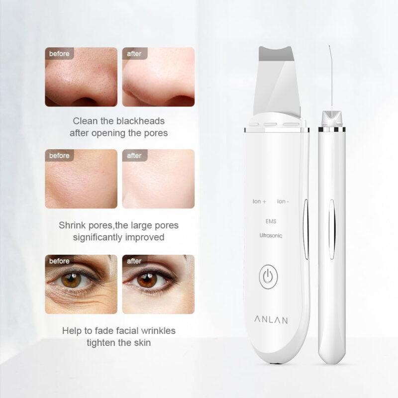 Ultrasonic Skin Scrubber Pore Cleaner